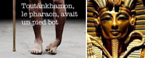 Toutânkhamon : le pharaon avait un pied bot